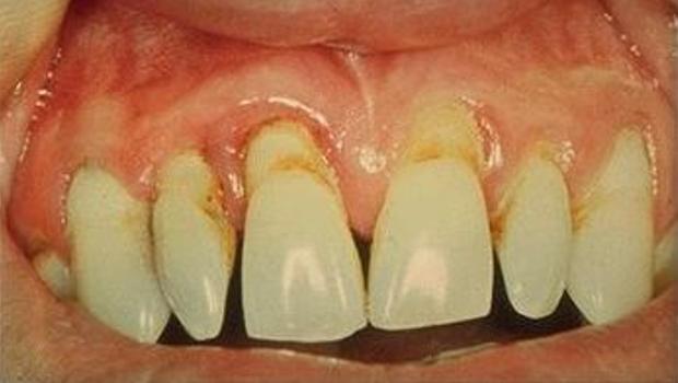 Zęby we śnie